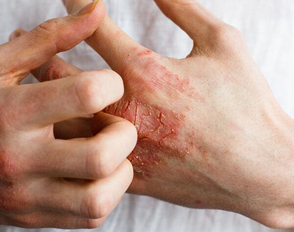 rascando piel irritada de la mano