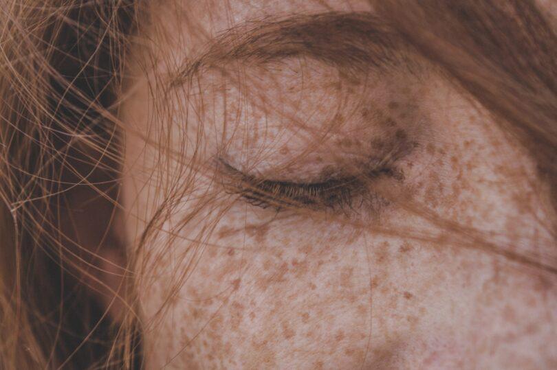 ¿Cómo se protege la piel de la radiación ultravioleta?