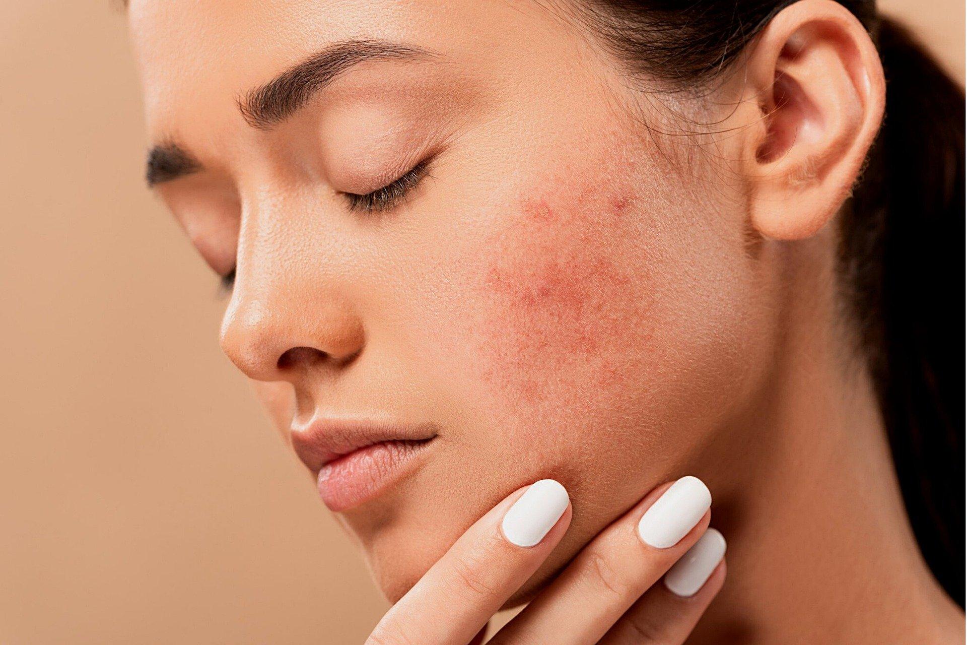 El estrés en la piel